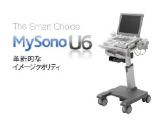 MySono U6